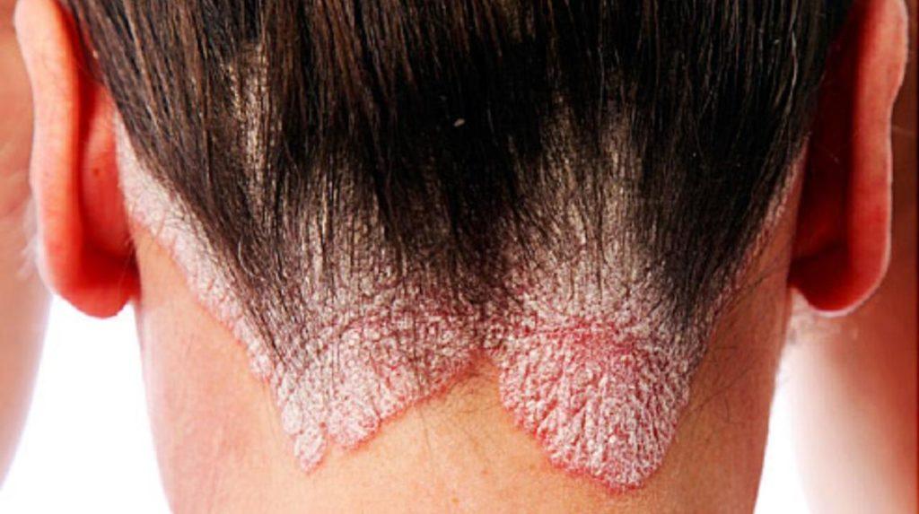 Проявление псориаза на голове