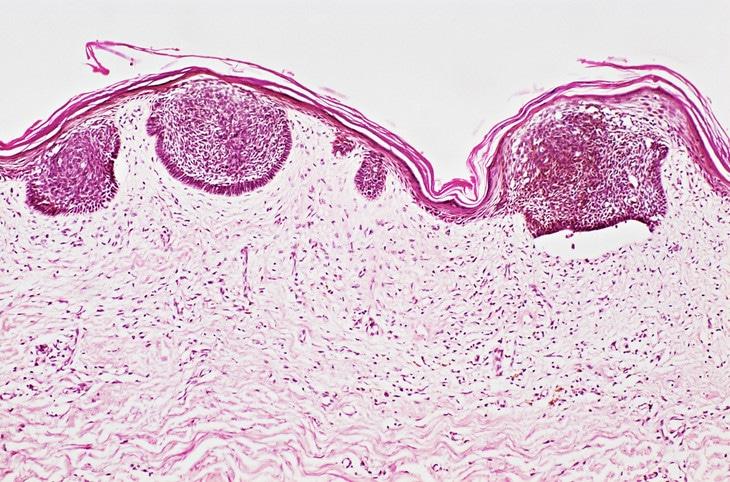 Базальноклеточная папиллома кожи – лечение