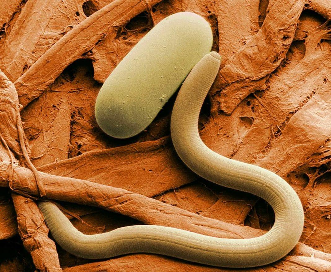 Папилломы – признак паразитов: какие виды вызывают папилломы