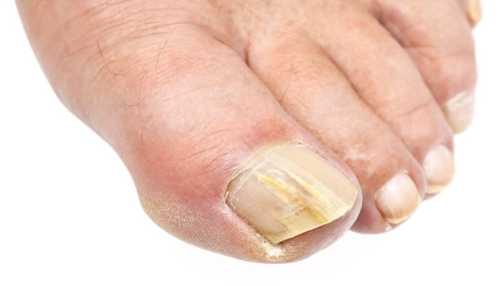 Пожелтение ногтей на ногах