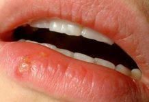 грибок на губах