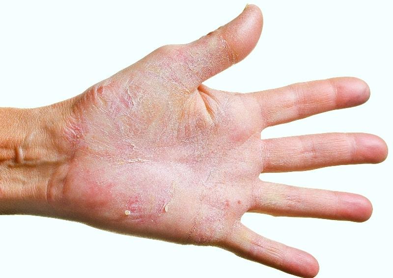 Как лечить кожу рук от грибка