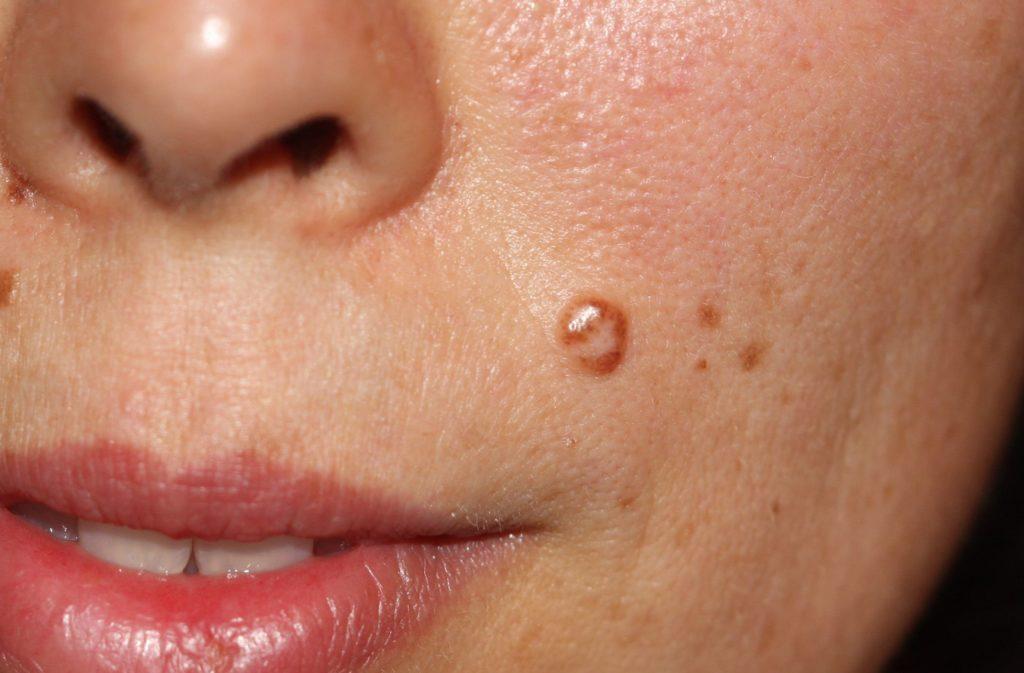 Развитие папилломы на лице