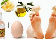 уксус с яйцом против грибка ногтей
