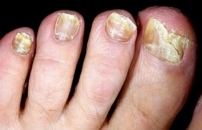 Травы от грибка ногтей: перечень и способы применения