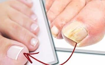 Чайный гриб от грибка ногтей на ногах: плюсы и минусы метода