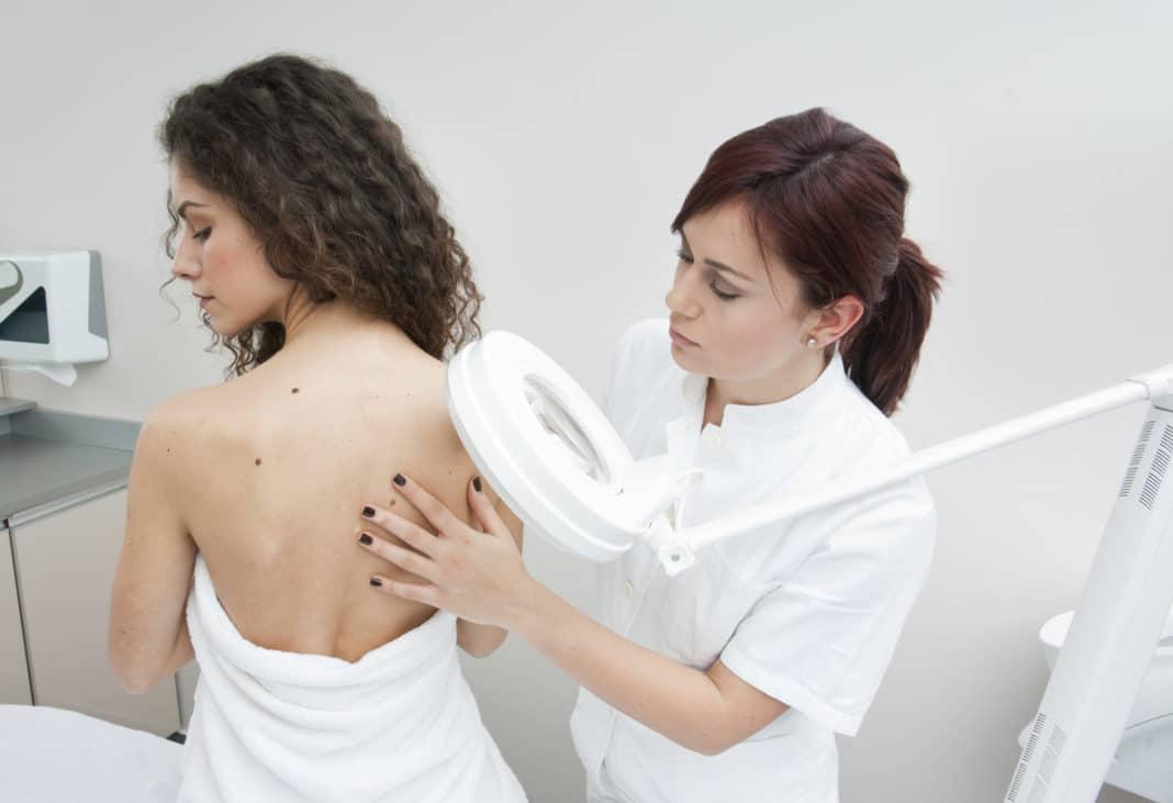 Папиллома на спине