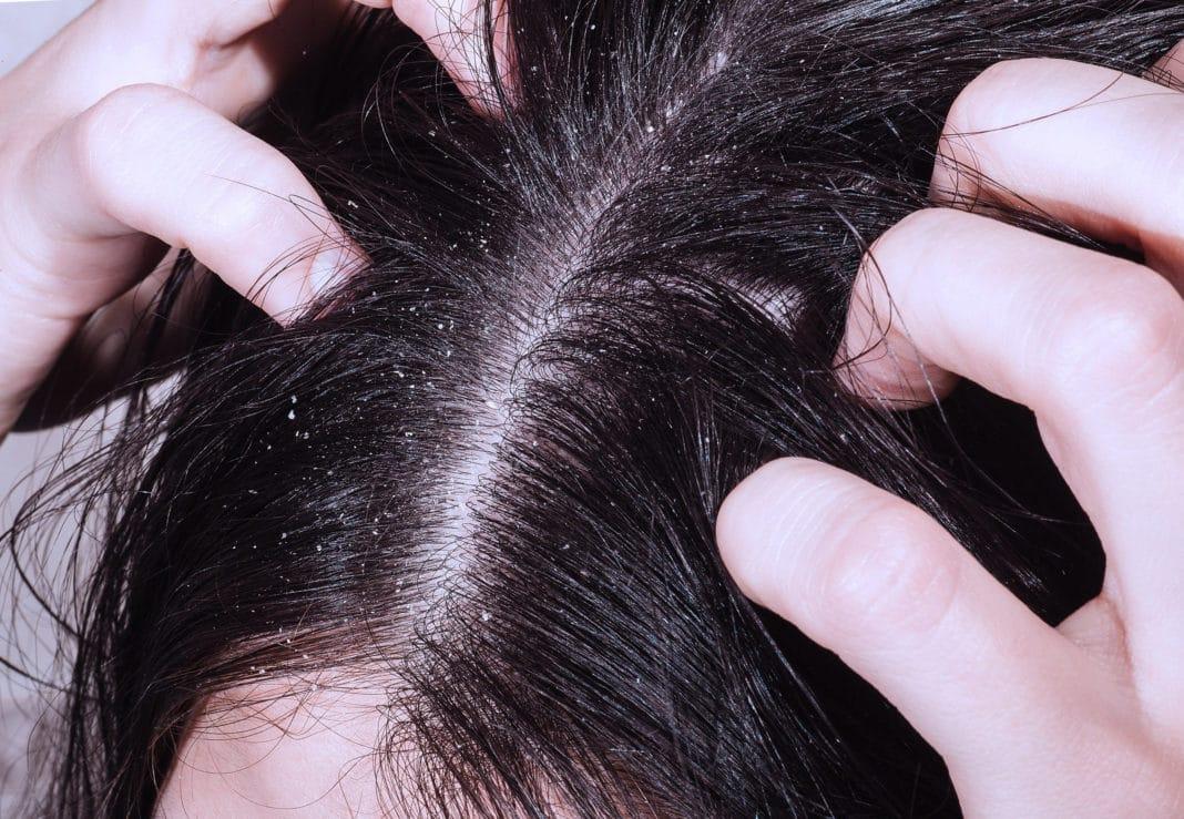 Противогрибковые мази для кожи головы