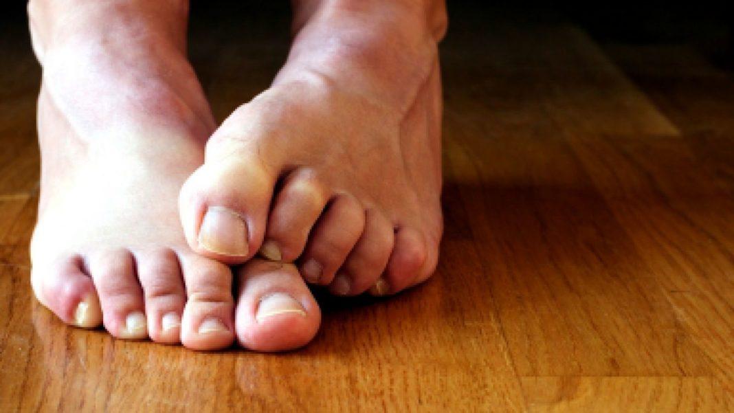Как выглядит и чем лечить грибок между пальцами ног?