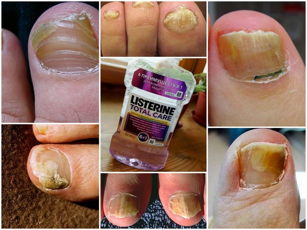 Листерин от грибка ногтей