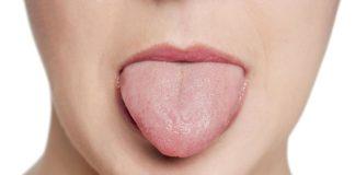 Способы лечения красного плоского лишая в ротовой полости
