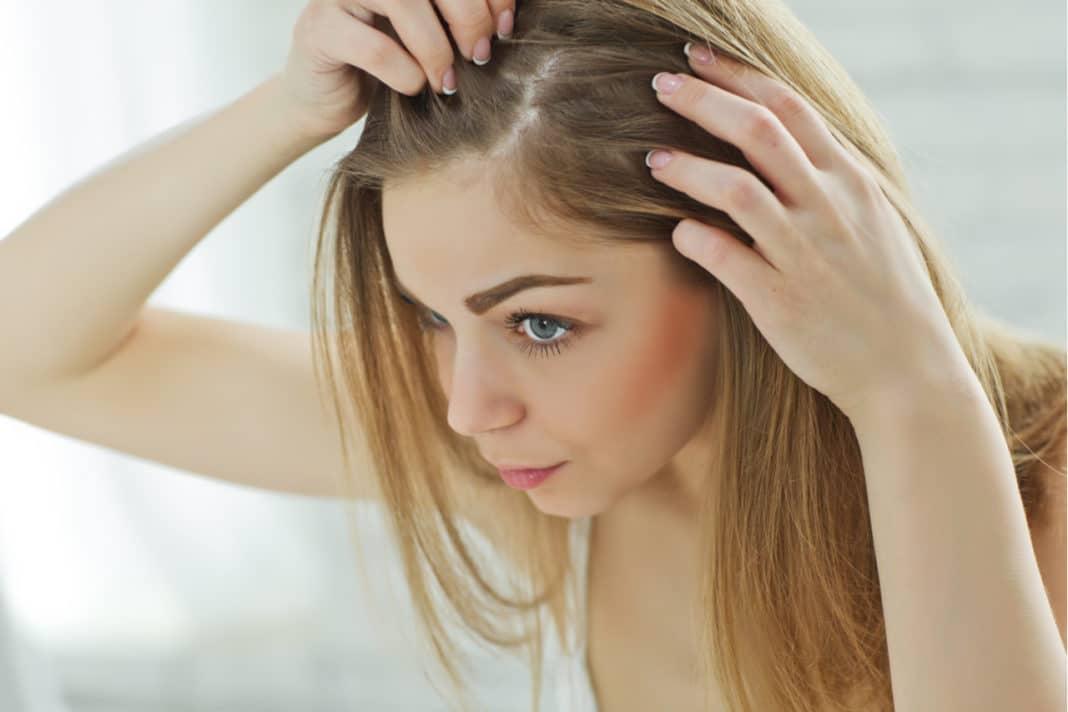 Выпадение волос при лишае